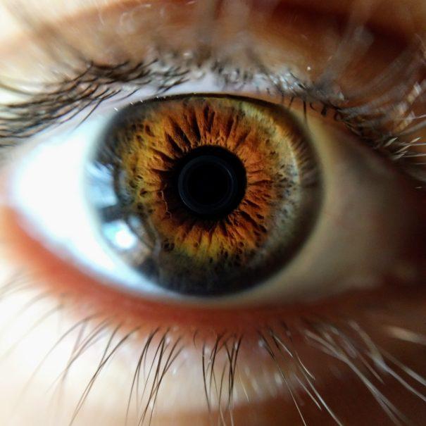 Iris vu à l'iridoscope