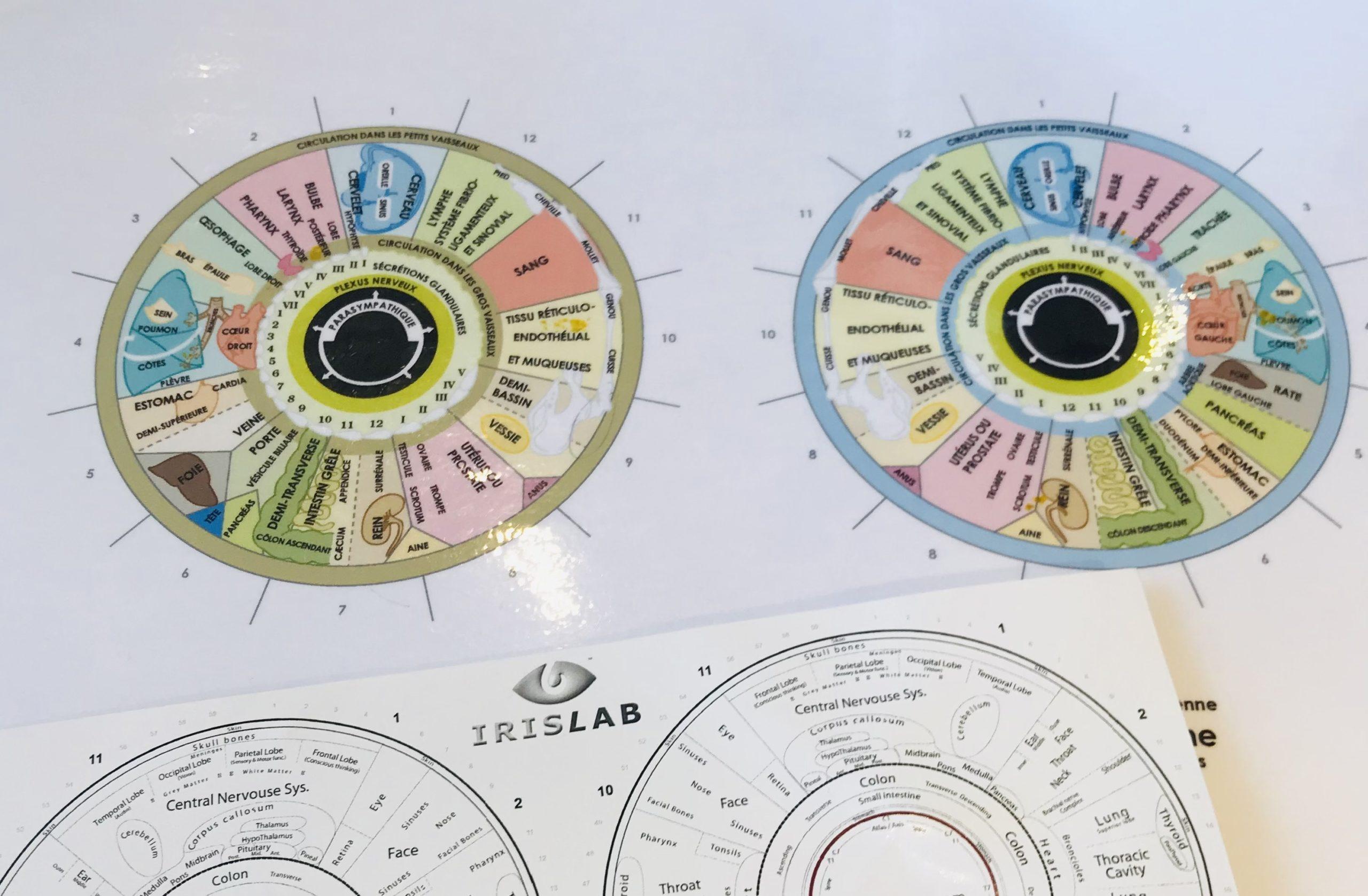 cartographie iris iridologie